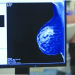 More Women With Breast Cancer May Soon Be Skipping Chemo. Here's Why...
