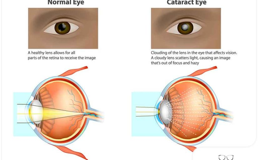 WHY DO WE GET CATARACTS?